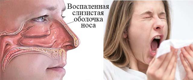 Как снять отек носа у беременных 82
