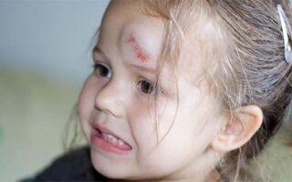 Что делать и чем лечить, если у ребенка от удара отек лоб и образовалась шишка
