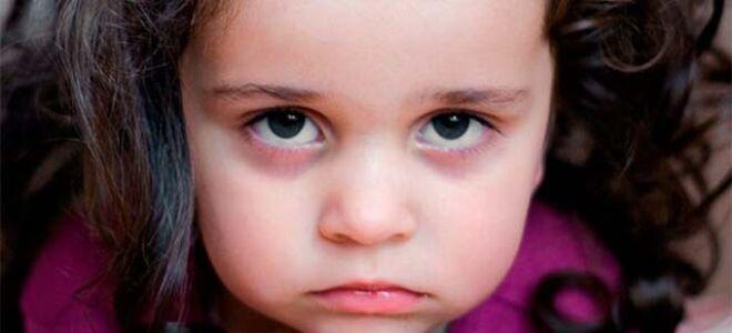 Причины появления синяков по глазами у ребенка и у новорожденных детей