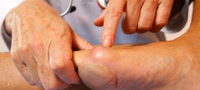 Как лечить шишку на ноге возле большого пальца