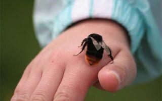 Как снять отек если укусила оса или пчела