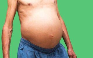 Основные признаки и методы лечения асцита брюшной полости