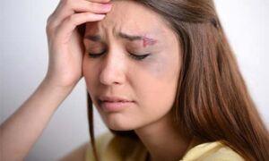 Лечение гематомы и отека на лице после удара