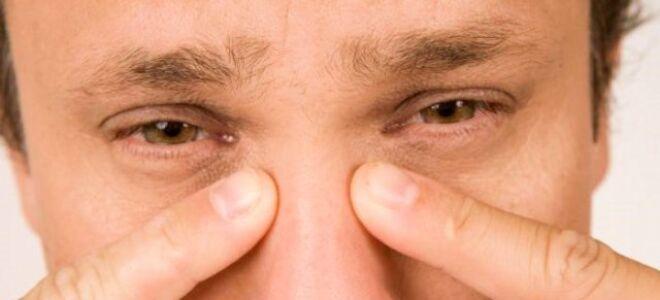 Причины и основные методы лечения при опухании или отеке переносицы