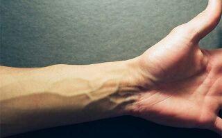 Почему вздуваются вены на руках и что делать