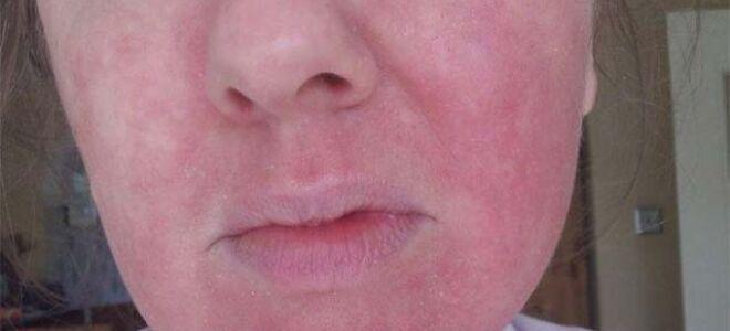 Что делать если на лице появилась крапивница, зуд, припухлость и покраснение