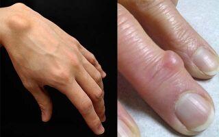Причины образования шишек на пальцах рук и способы лечения