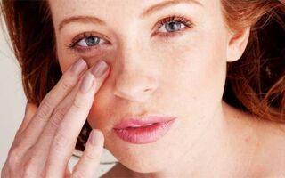 Как быстро убрать утренний отек лица у женщины, причины и лечение
