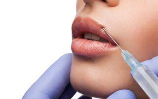 Сколько держится отек на губах после увеличения и как его уменьшить
