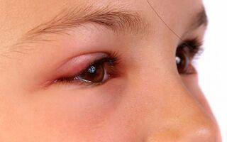 Что делать если у ребенка покраснело и опухло верхнее веко