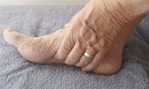 Причины и лечение сильного отека ног внизу стопы и голени у пожилых людей