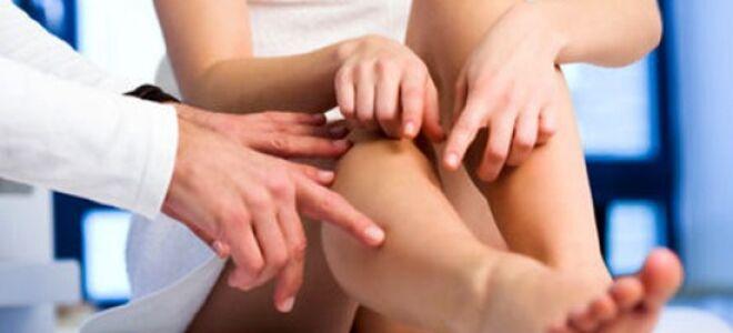 Симптомы рожистого воспаления ног и способы лечения
