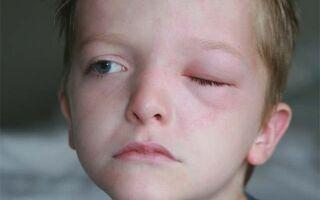 Что делать если у ребенка опухло верхнее или нижнее веко глаза