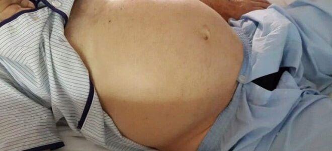 Как избавиться от асцита при циррозе печени: лечение, питание и диета