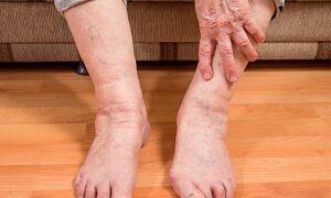 Почему у пожилых женщин отекают ноги, причины и лечение