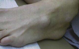 Лечение шишки с внешней стороны на ноге сбоку стопы и причины образования