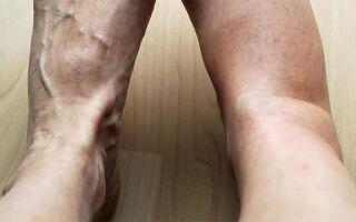 Основные методы лечения у пожилых людей водянки на ногах