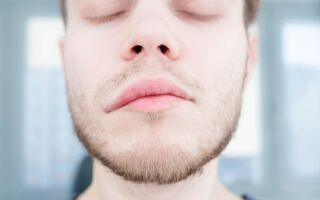 Причины и методы лечения аллергического отека губ