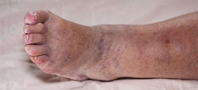 Причины и лечение отечности, посинения ног у пожилого человека