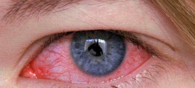 Основные причины, симптомы и методы лечения отека диска зрительного нерва