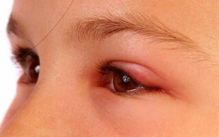 Основные причины и лечение аллергического отека одного века