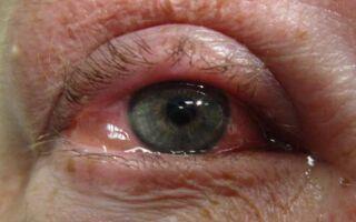 Лечение отека роговицы глаза после операции катаракты и замены хрусталика