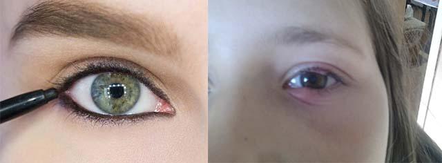 Опух глаз из за косметики