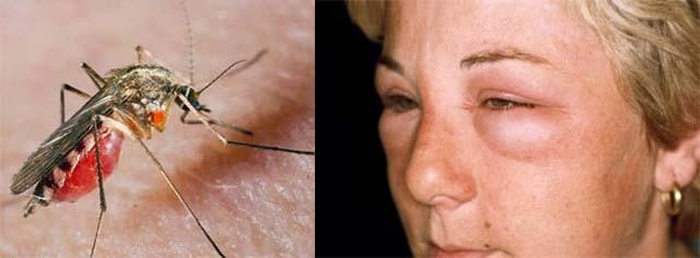 Укус комара в нижнее веко