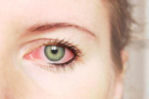 Покраснение век глаза