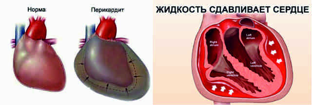 Жидкость в сердце: причины и лечение перикардита сердца