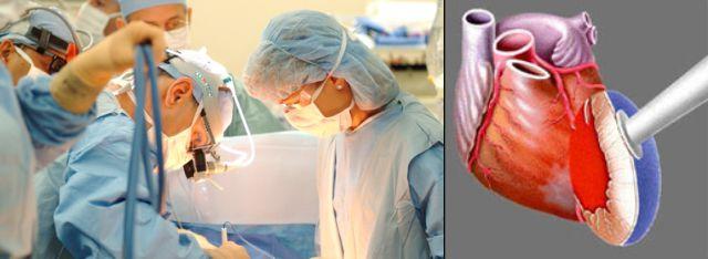 Операция на сердце лазером