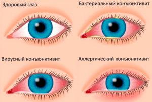 Виды глазной аллергии