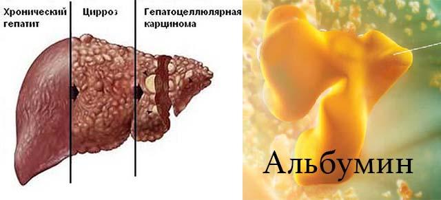 Белок альбумин и печень