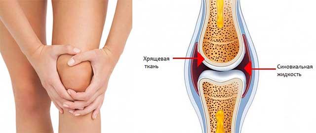 синовиальный экссудат колена