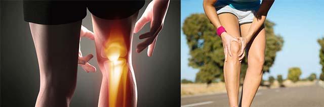 Повреждения мягких тканей колена