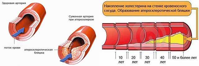 Заболевания нервных волокон и сосудов колена