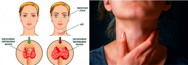 Нарушение работы щитовидной железы,