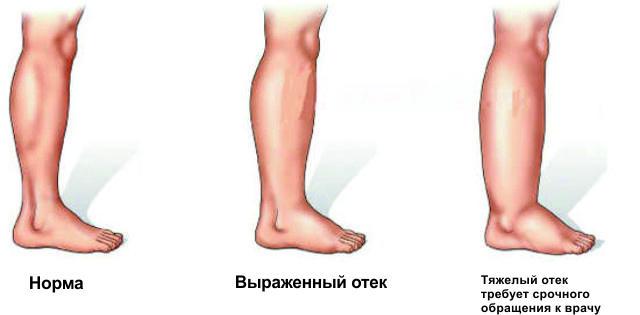Примеры отека ног