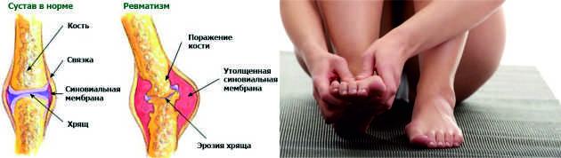 Схема ревматизма ног у девушки