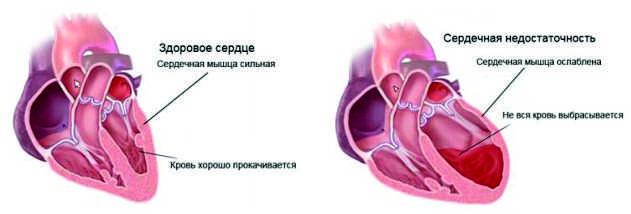 Пример сердечной недостаточности