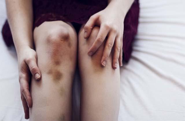 Гематома после операции на коленный сустав влияние холодца и желатина на восстановление суставов