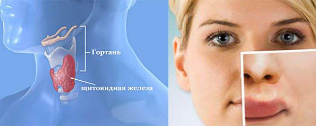 Схема глотки человека и отек губ