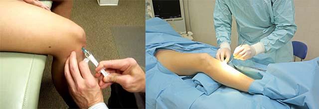Пункция и реконструктивная операция ноги