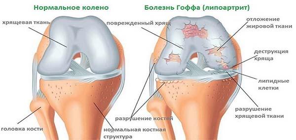 Схема болезни Гоффа