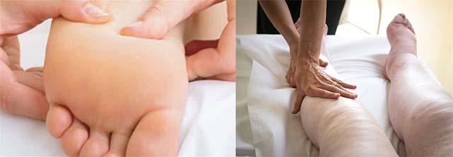 Отекшие ноги после ангионевротического шока