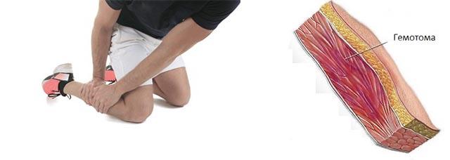 Как лечить гематомы и отеки на ногах thumbnail