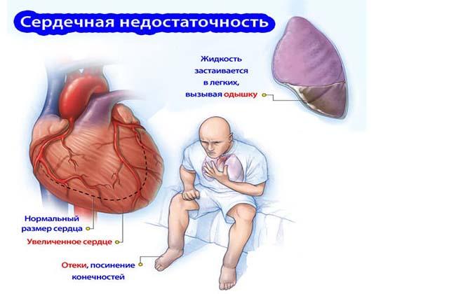Признаки при сердечной недостаточности
