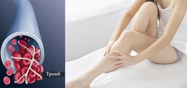 Девушка гладит свои ноги и схема тромба