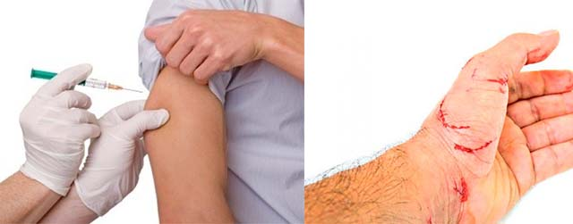Вакцинация после царапин