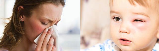 Опух глаз у ребенка и девушка чихает